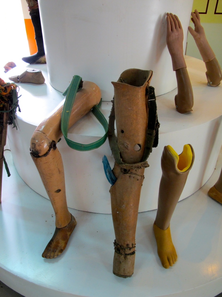 Old and new prostheses are displayed at the Project Renew Visitor Center. (Photo by Nissa Rhee, June 2014)